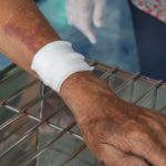 How to Reduce the Chances of Scarring After Sustaining a Skin Abrasion?
